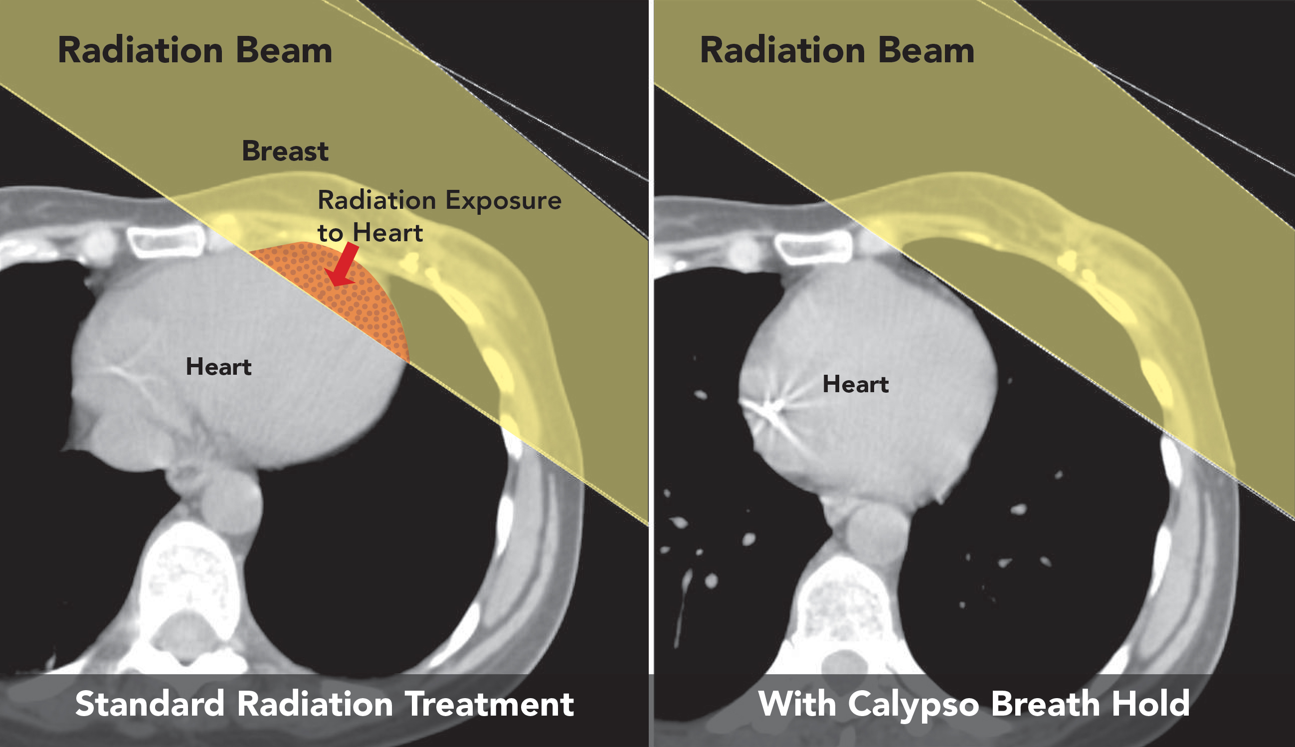Radiation affects on the breast