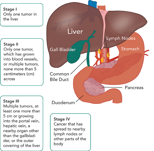 Liver Cancer Stages | Seattle Cancer Care Alliance