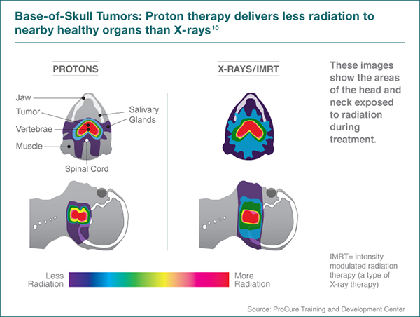 Side Effects Of Proton Therapy For Brain Tumors Proton