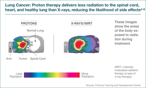 proton therapy for lung cancer seattle cancer care alliance