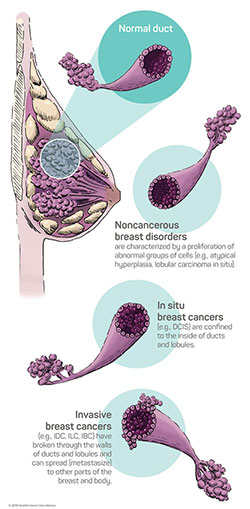 Breast cancer facts | Seattle Cancer Care Alliance