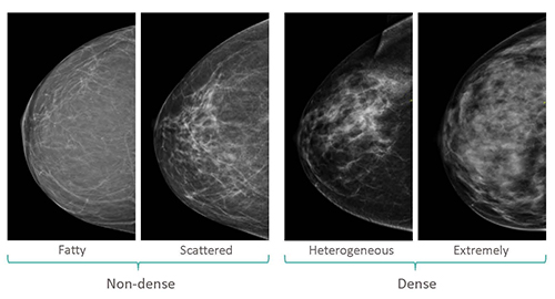 Breast Density Patient Information Seattle Cancer Care Alliance